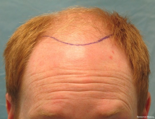 Position of Planned Hairline