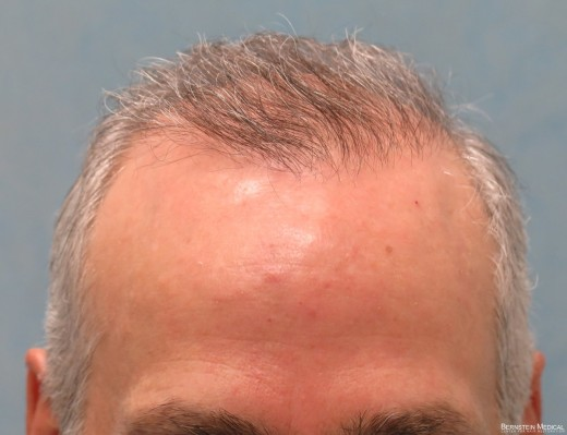 After 1st Hair Transplant
