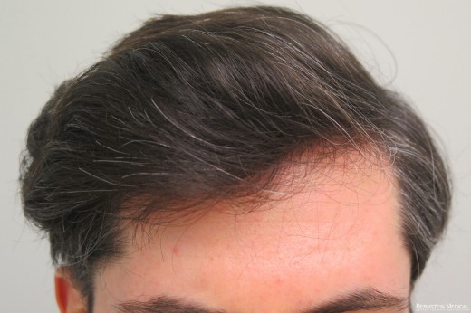 5 Years After 1 Hair Transplant Session
