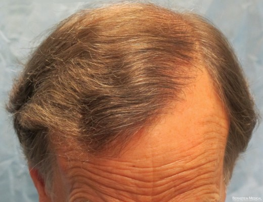 After Hair Transplant - Top View