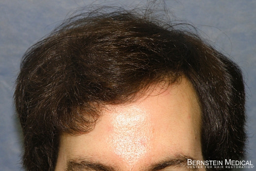 After 2nd Hair Transplant