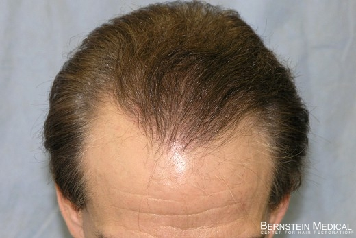 Three Weeks After 2nd Session of 1,509 Grafts - Top View