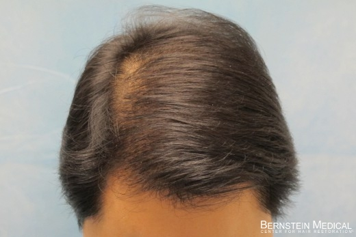 After 1st Hair Transplant Session - Top View