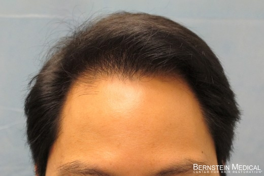 After 1st Hair Transplant Session