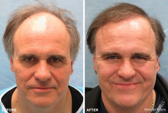 Patient IOI - Before and After Hair Transplant