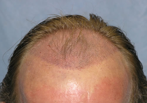 Tiny recipient sites - Hair Transplantation, Hair Restoration