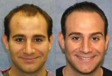 Hair Transplant Patient SAE