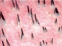 Follicular Unit Transplantation - Miniaturization: Thick terminal hair, fine vellus hair, and hair of intermediate diameter (miniaturized hair)