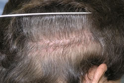 Photo of Hair Transplantation