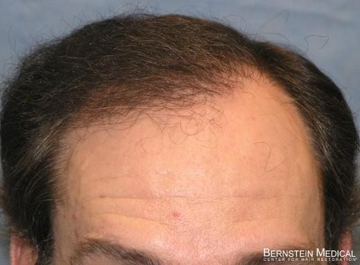 After 1st Hair Transplant Session At 1 Year