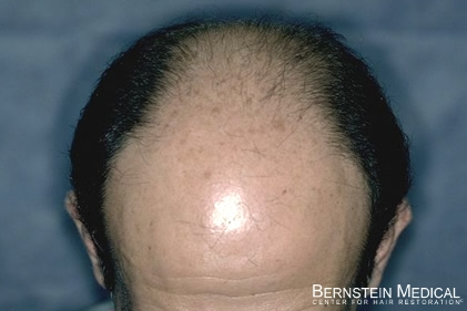 Before Hair Transplant - Top View