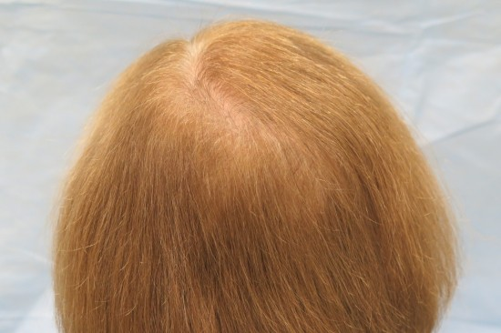 Results after one hair restoration procedure