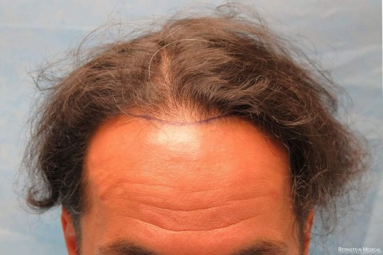 Position of Hairline