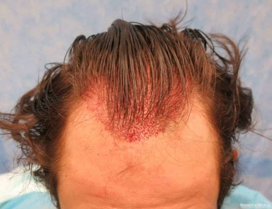 Follicular Unit Grafts Placed
