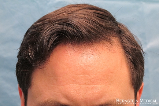 Results 1 Year After Hair Transplant of 2,413 Grafts