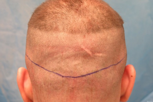 Donor Area Showing Childhood Scar