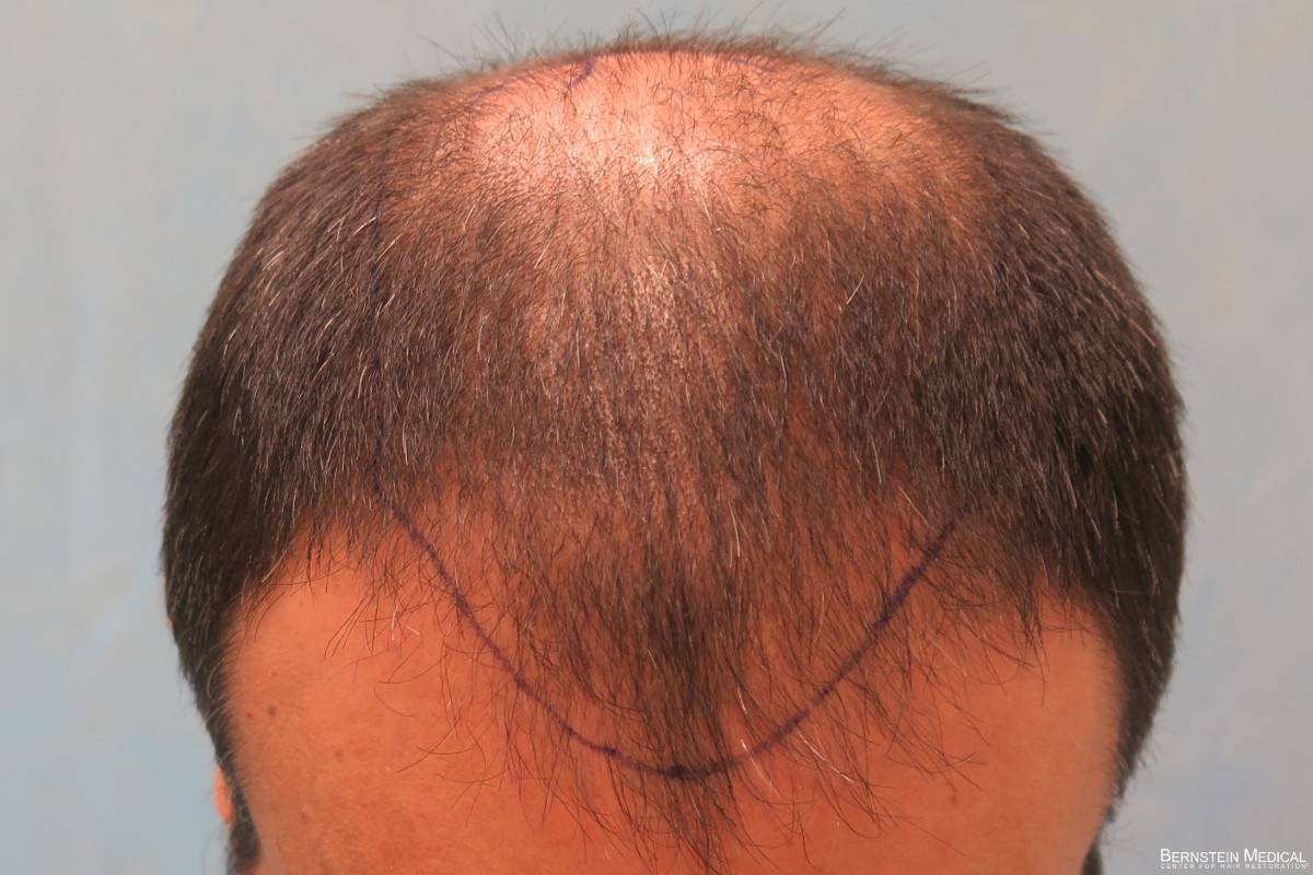 Position of Anticipated Hairline - Top View