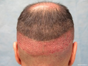 Robotic FUE Hair Transplantation