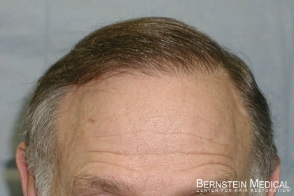 After 2nd Hair Transplant Session