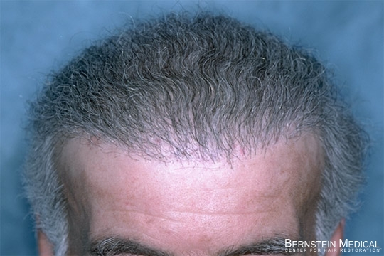 After 1st Hair Transplant Repair Session