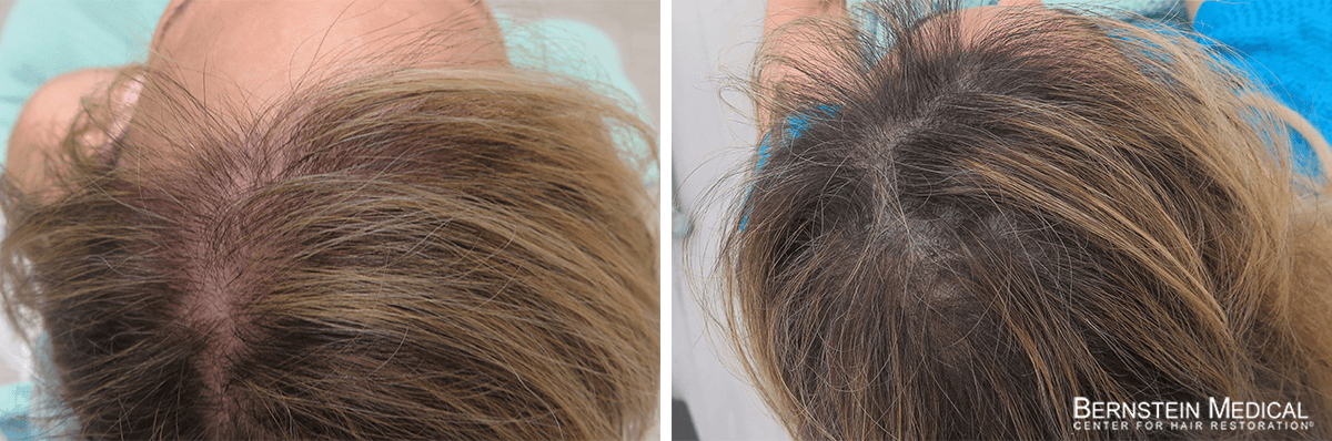 Bernstein Medical - Patient LBY Before and After Hair Transplant Photo