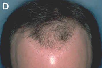 Art of Repair in Surgical Hair Restoration Pt II - Some residual white scars from the plug excision