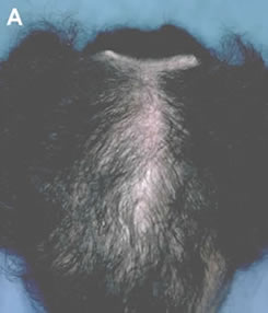 Art of Repair in Surgical Hair Restoration Pt II - Complications of a poorly planned scalp reduction that produced a wide scar and a 'Dog Ear' puckering of the scalp
