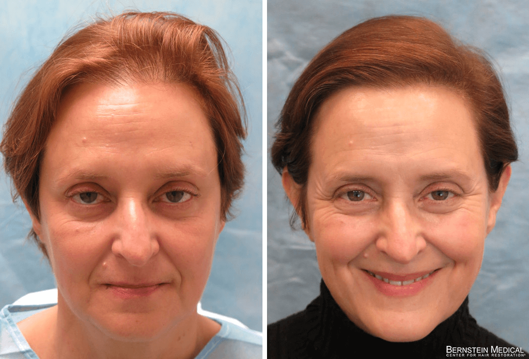 Bernstein Medical Hair Restoration Before and After - Patient ANJ