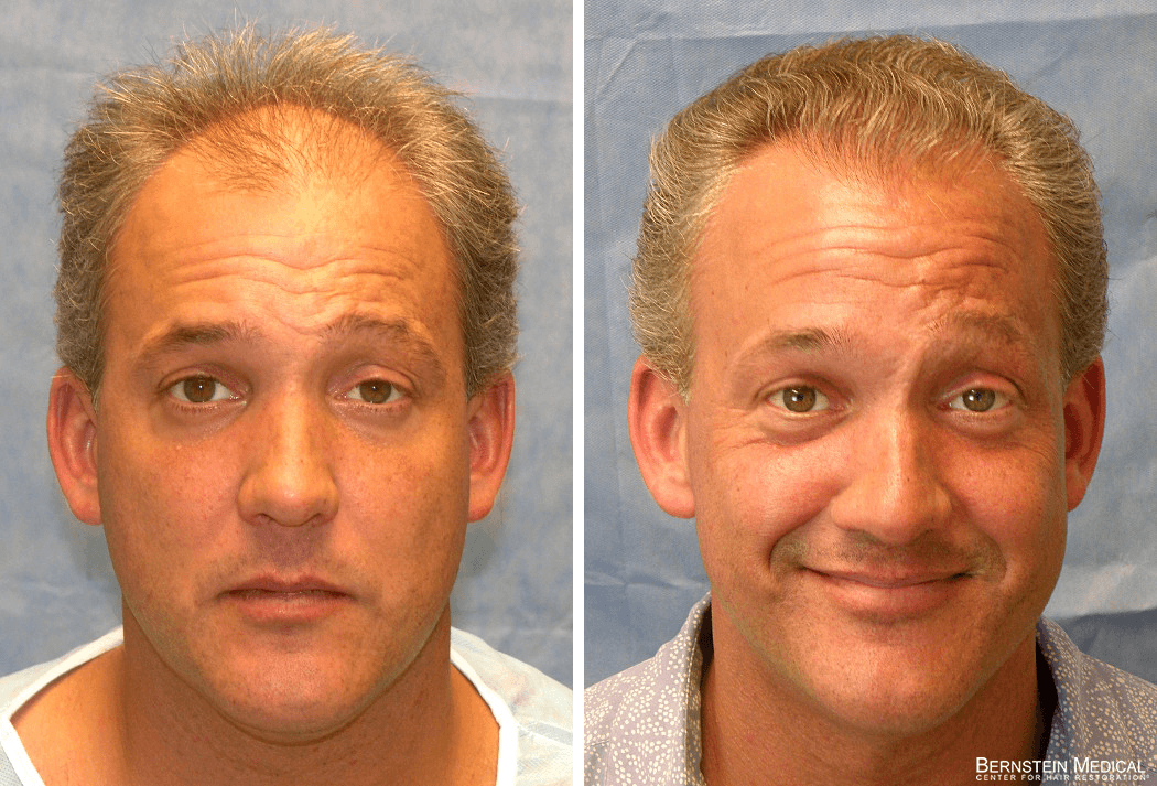 Bernstein Medical - Patient BRB Before and After Hair Transplant Photo