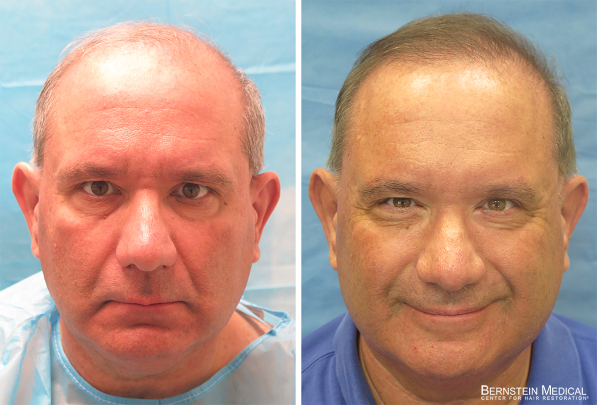Bernstein Medical - Patient BZB Before and After Hair Transplant Photo