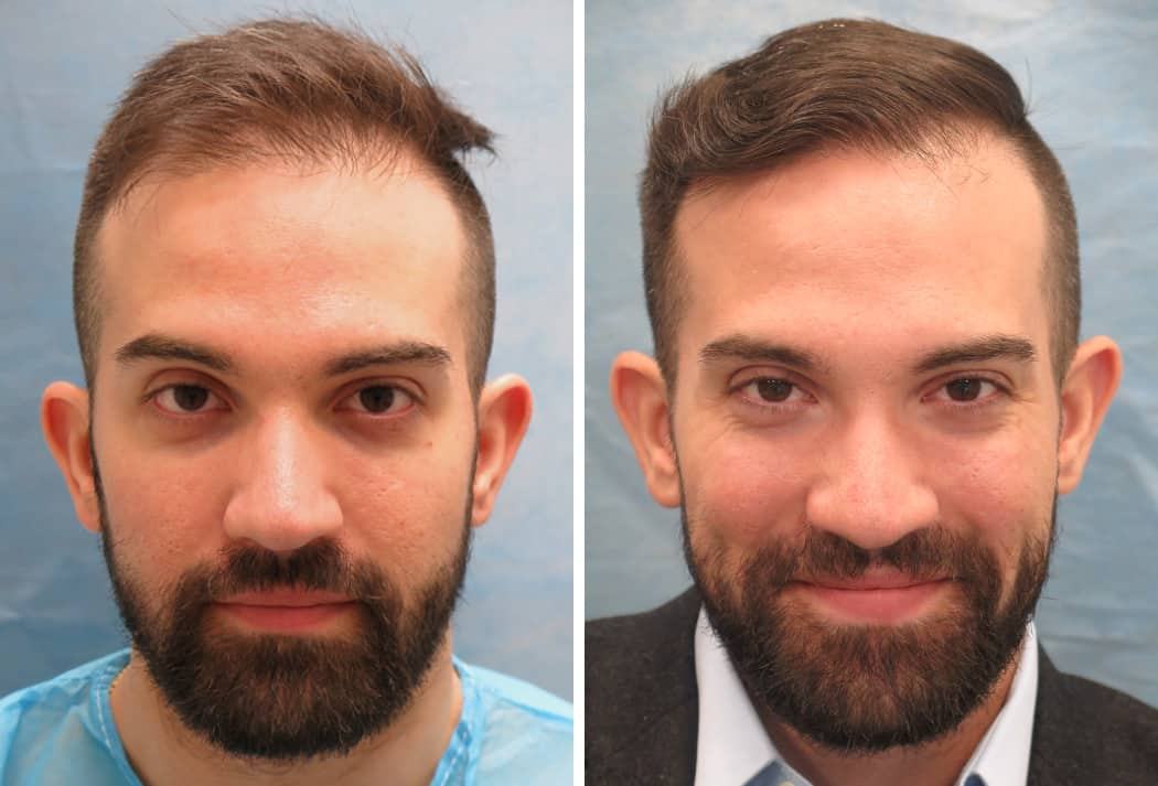 Bernstein Medical - Patient CFQ Before and After Hair Transplant Photo