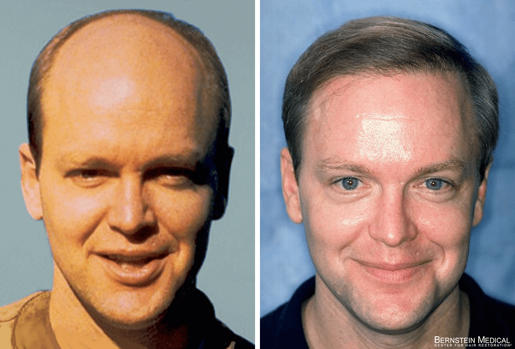 Bernstein Medical - Patient CLF Before and After Hair Transplant Photo