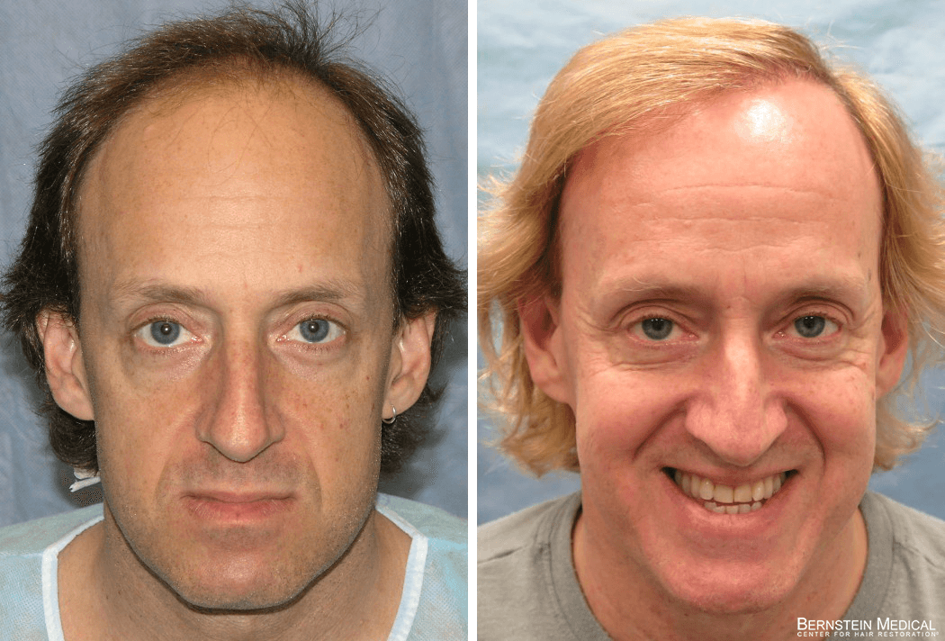 Bernstein Medical - Patient ECL Before and After Hair Transplant Photo