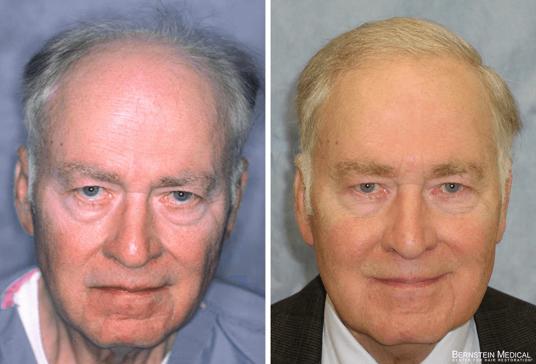 Bernstein Medical - Patient GAQ Before and After Hair Transplant Photo