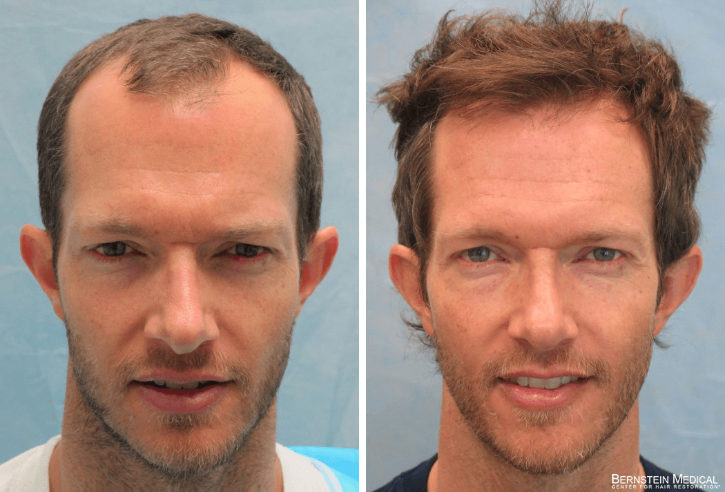 Bernstein Medical - Patient GKL Before and After Hair Transplant Photo