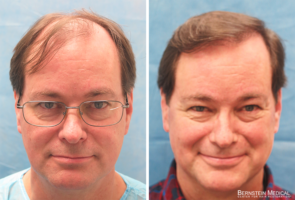 Bernstein Medical - Patient JYC Before and After Hair Transplant Photo