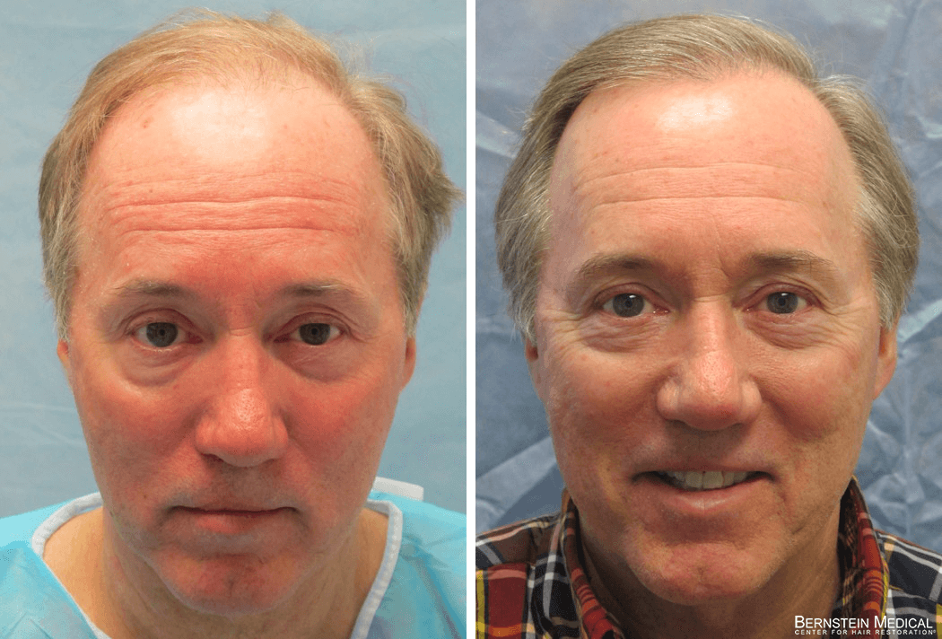 Bernstein Medical - Patient KEB Before and After Hair Transplant Photo