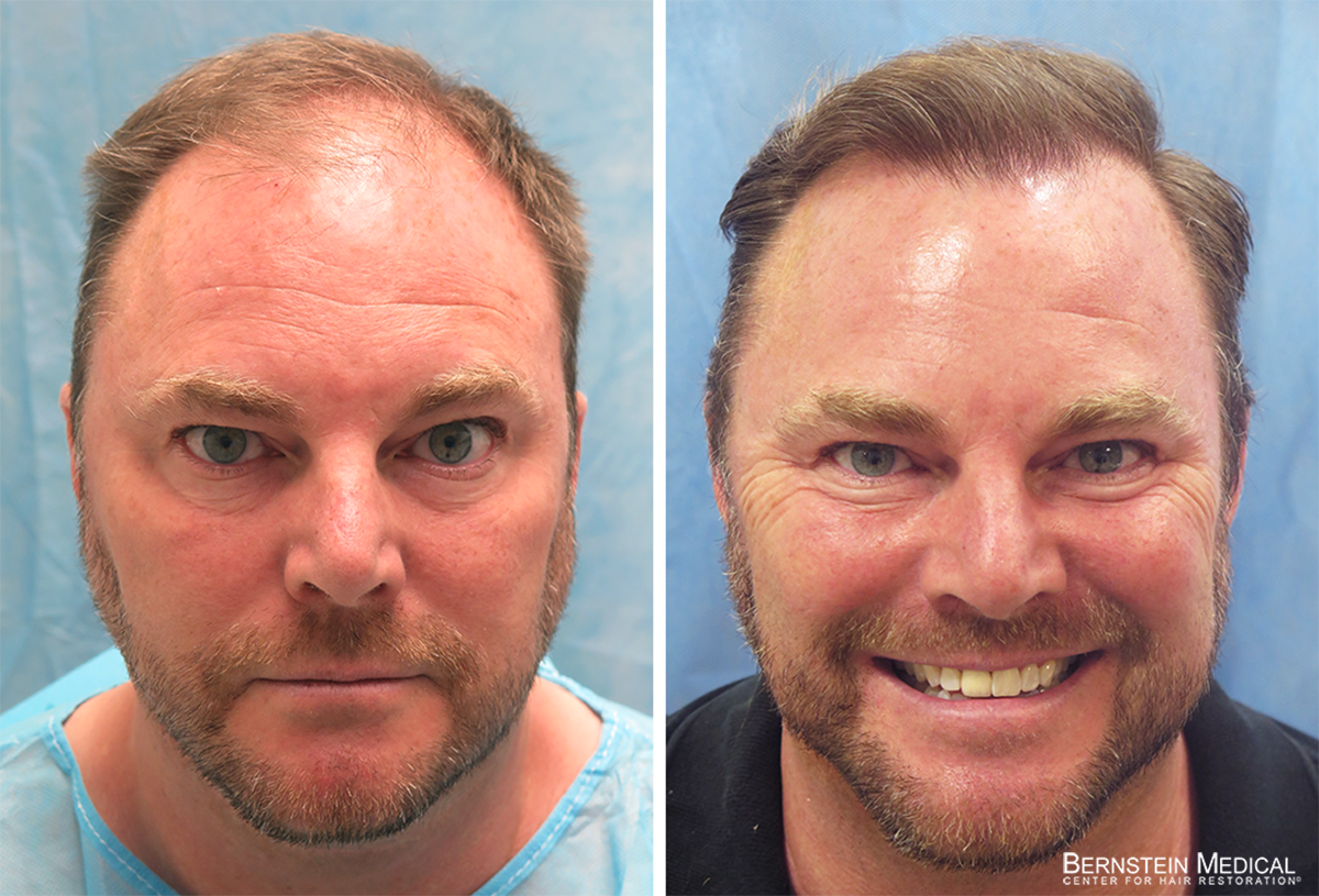 Bernstein Medical - Patient VXB Before and After Hair Transplant Photo