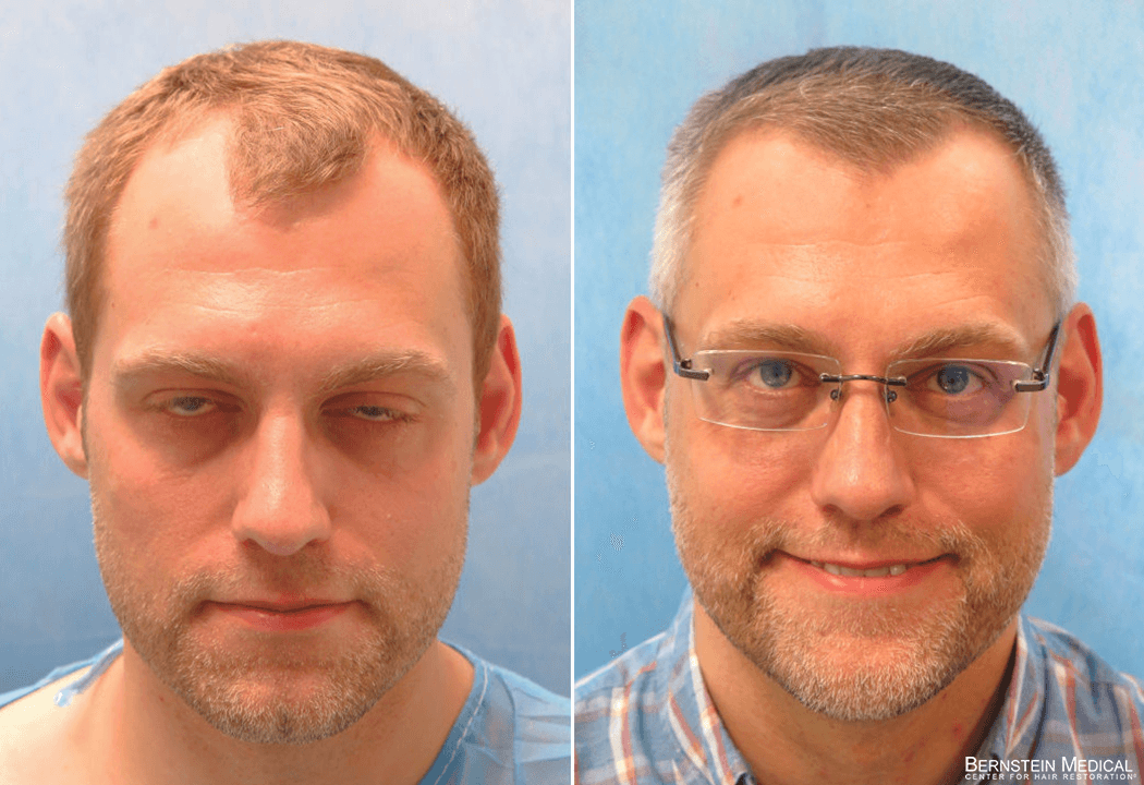 Bernstein Medical - Patient MXF Before and After Hair Transplant Photo