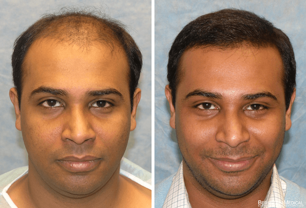 Bernstein Medical - Patient UAR Before and After Hair Transplant Photo