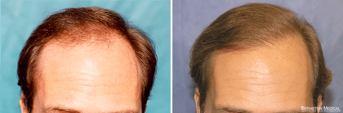 Bernstein Medical - Patient GKR Before and After Hair Transplant Photo