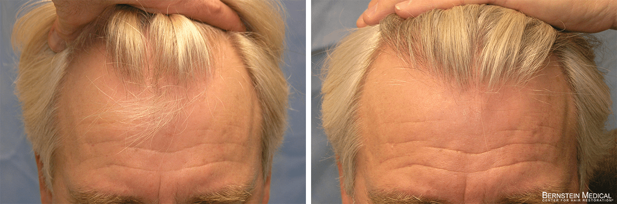 Bernstein Medical - Patient IOV Before and After Hair Transplant Photo