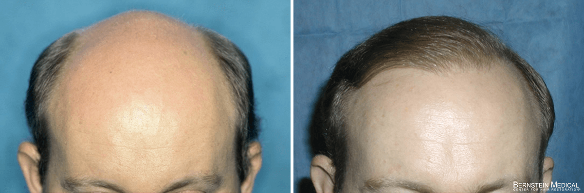 Bernstein Medical - Patient QGA Before and After Hair Transplant Photo