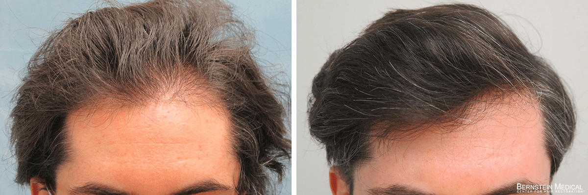 Bernstein Medical - Patient REI Before and After Hair Transplant Photo