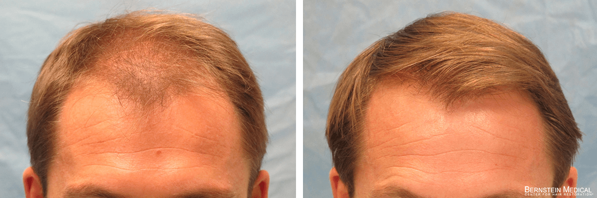 Bernstein Medical - Patient RLZ Before and After Hair Transplant Photo