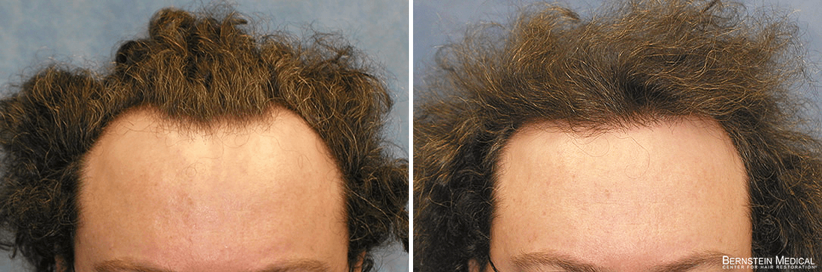 Bernstein Medical - Patient RNL Before and After Hair Transplant Photo