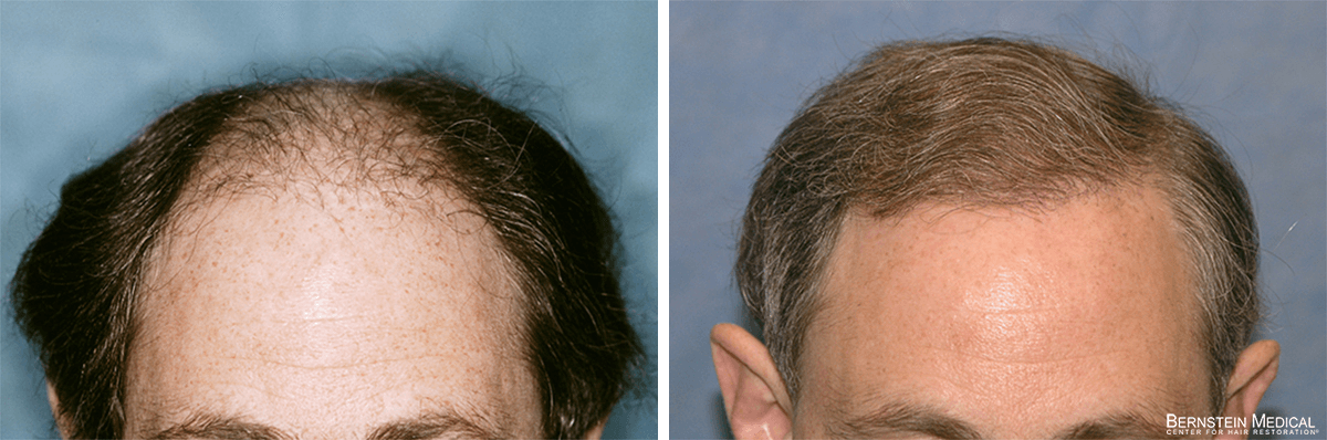 Bernstein Medical - Patient SNC Before and After Hair Transplant Photo