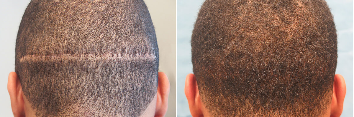 Bernstein Medical - Patient LYQ Before and After Hair Transplant Photo