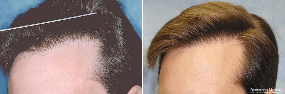 Bernstein Medical - Patient LJZ Before and After Hair Transplant Photo
