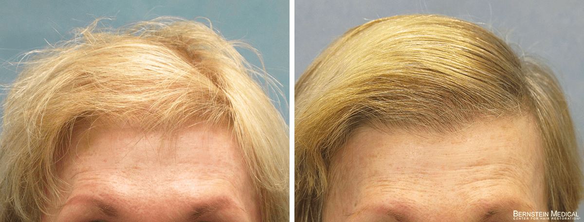 Bernstein Medical - Patient GTB Before and After Hair Transplant Photo